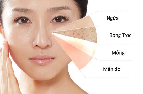 Omega - 3 có thể hydrat hóa làn da và bảo vệ da khỏi các chất kích thích và rối loạn da